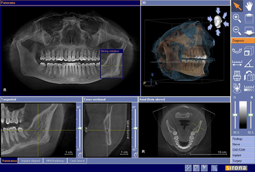 Cone beam computed tomography-CBCT
